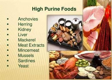 makanan tinggi purin